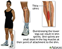 Shin splints