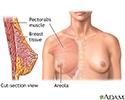 Breast augmentation - series