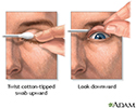 Eyelid eversion