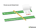 Fecal occult blood test