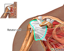 Rotator cuff repair - series