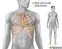 ECG electrode placement