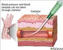 Peripheral arterial line