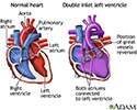 Double inlet left ventricle