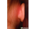 Mastoiditis - redness and swelling behind ear