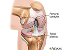 Knee joint replacement - Series