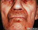 Amyloidosis on the face