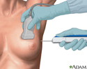 Core needle biopsy of the breast