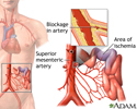Mesenteric artery ischemia and infarction