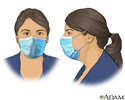 Face masks prevent the spread of COVID-19
