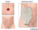 Ileostomy - stoma and pouch