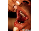 Pemphigus vulgaris - lesions in the mouth