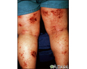 Dermatitis, atopic on the legs