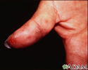 Dermatitis, herpetiformis on the thumb