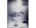 Small bowel obstruction - X-ray