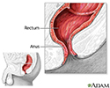 Hemorrhoid surgery - series