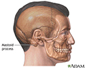 Mastoidectomy - series - Normal anatomy
