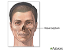 Septoplasty - series