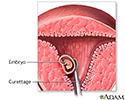 Abortion procedure