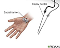 Carpal biopsy