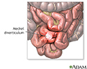 Meckel diverticulum