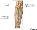 Femoral nerve damage