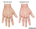 Chapped hands