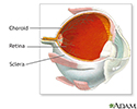 Choroid of the eye
