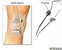 Synovial biopsy