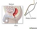 Anal biopsy