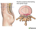 Herniated nucleus pulposus