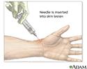 Skin lesion aspiration