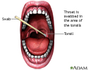 Throat swabs