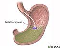 Gelatin capsule in stomach