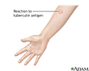 Tuberculin skin test