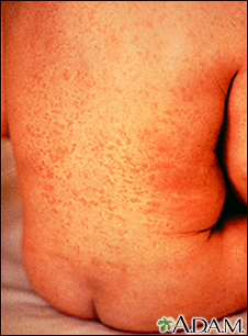 Rubella on an infant's back