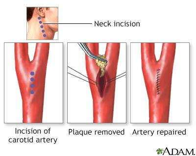 Carotid Artery Surgery Series