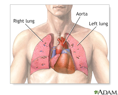 Heart lung transplant series university of maryland medical center normal anatomy ccuart Image collections