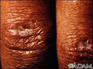 Dermatomyositis - Gottron papule