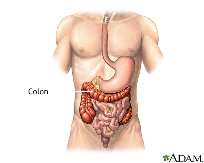 The colon or large intestine - Normal anatomy