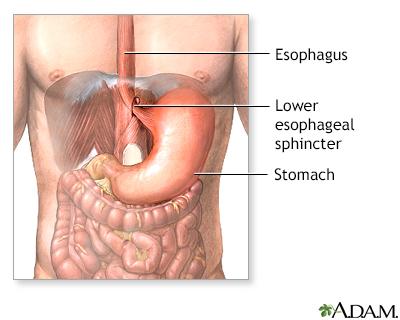 Gastroesophageal reflux - series