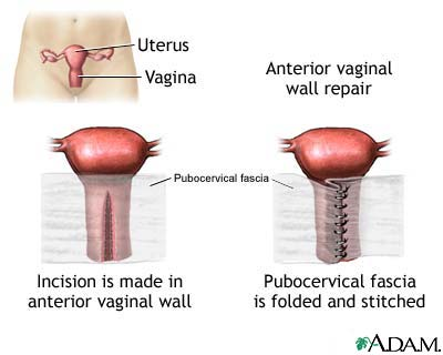 Vaginal Surgery For Pelvic Organ Prolapse Using Mesh And A Vaginal Support Device