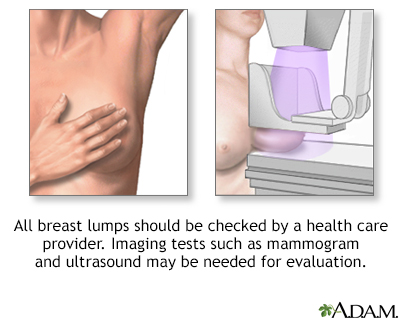 Breast Lump Information Mount Sinai New York