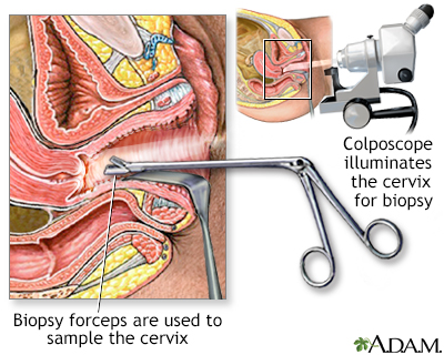 Colposcopy-directed biopsy