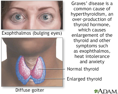 Graves Disease Information Mount Sinai New York