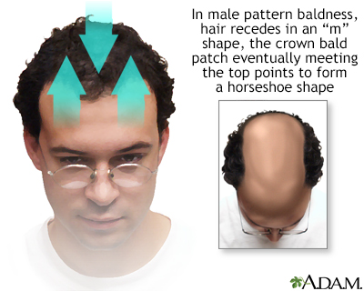 Confirm. join Male pattern baldness sexlinked gene think