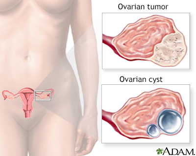 Ovarian Cancer Information Mount Sinai New York