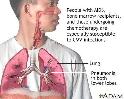 CMV pneumonia