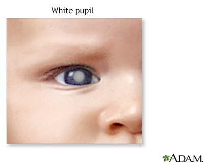 Pupil - white spots Information | Mount Sinai - New York