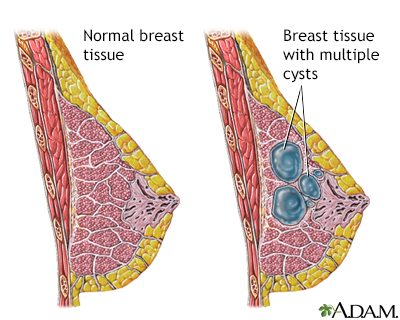 Fibrocystic breast change